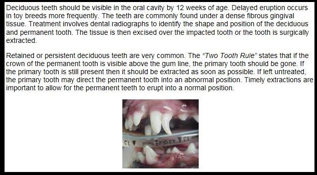 Teeth - pulling